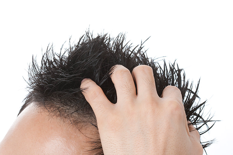 脱毛症(AGA)